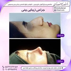 جراح بینی زاهدان