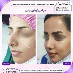 بهترین جراح بینی زاهدان