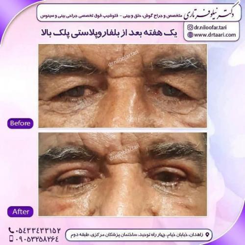 جراحی پلک 10