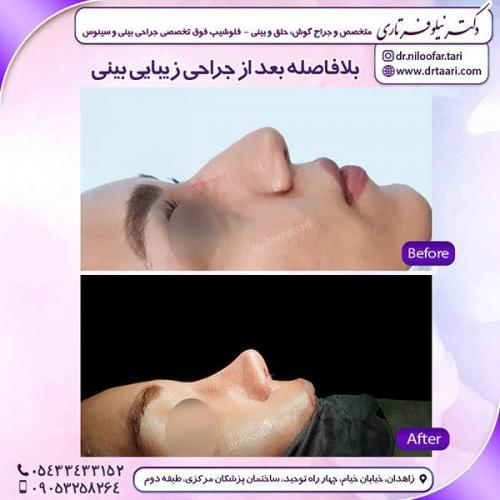جراحی-بینی-104