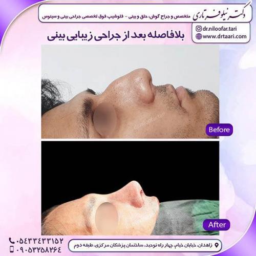جراحی-بینی-106