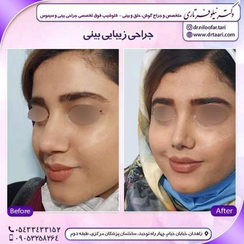 جراحی-بینی-116