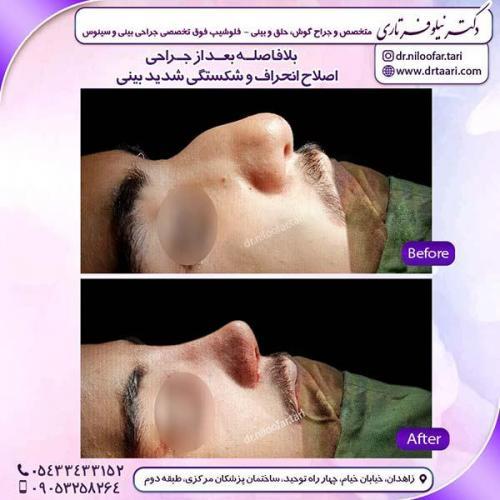 جراحی-بینی-146
