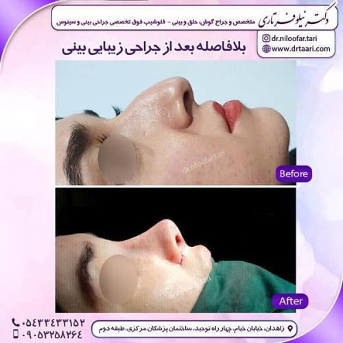جراحی-بینی-165