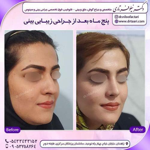 جراحی-بینی-200
