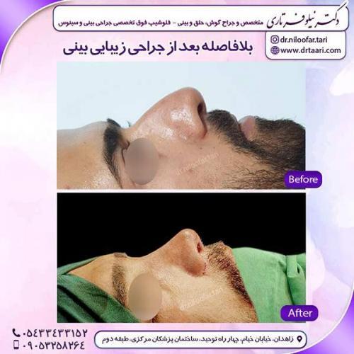 جراحی-بینی-91