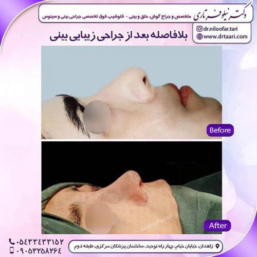 جراحی-بینی-93