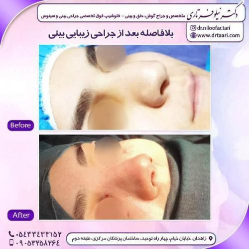 جراحی بینی 285 (48)