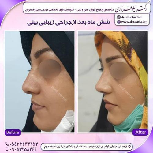 جراحی بینی 285 (52)