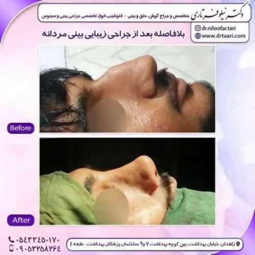 جراحی بینی 285 (54)