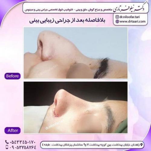 جراحی بینی 285 (66)