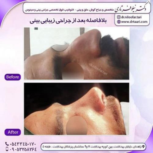 جراحی بینی 285 (74)