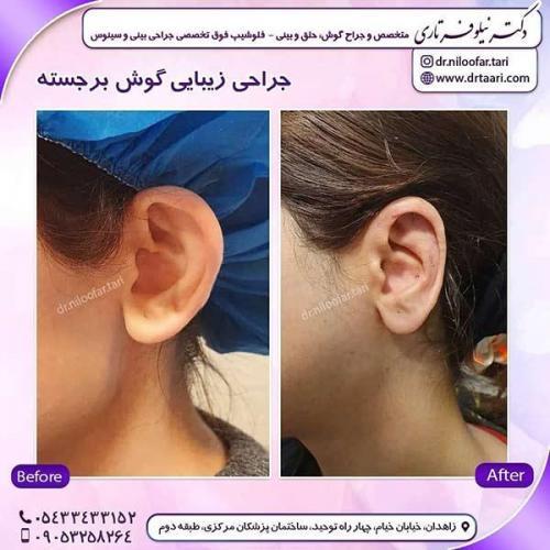 جراحی-گوش-5